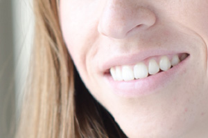 歯内治療イメージ